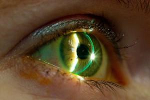 Eye exam 2